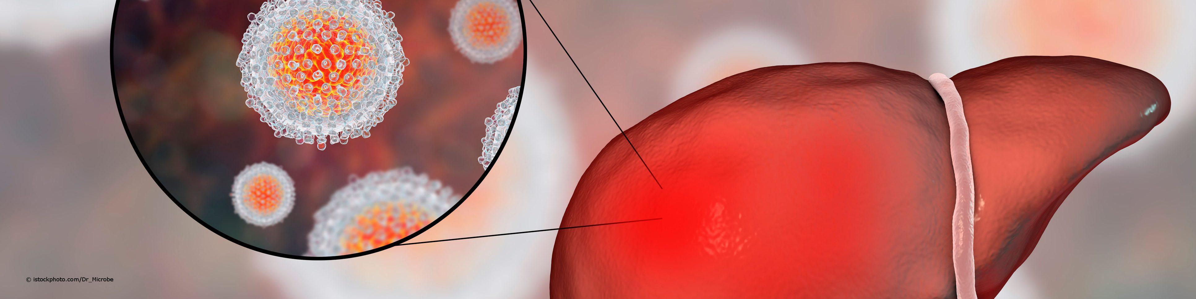 Das Hepatitis A-Virus kann die Leber angreifen und zu einer Leberentzündung führen.