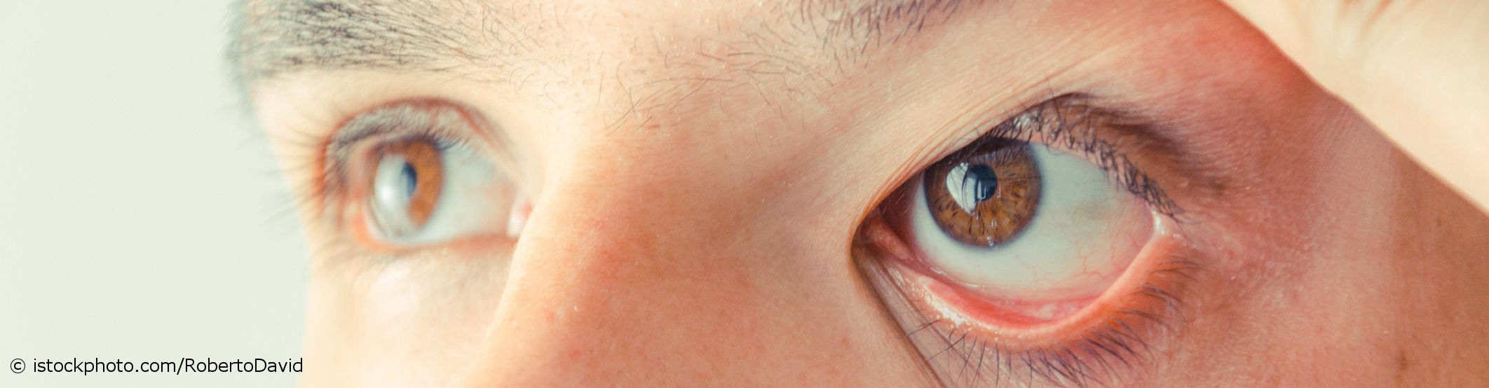 Mann mit trockenen Augen zieht Ober- und Unterlid seines Auges nach oben.