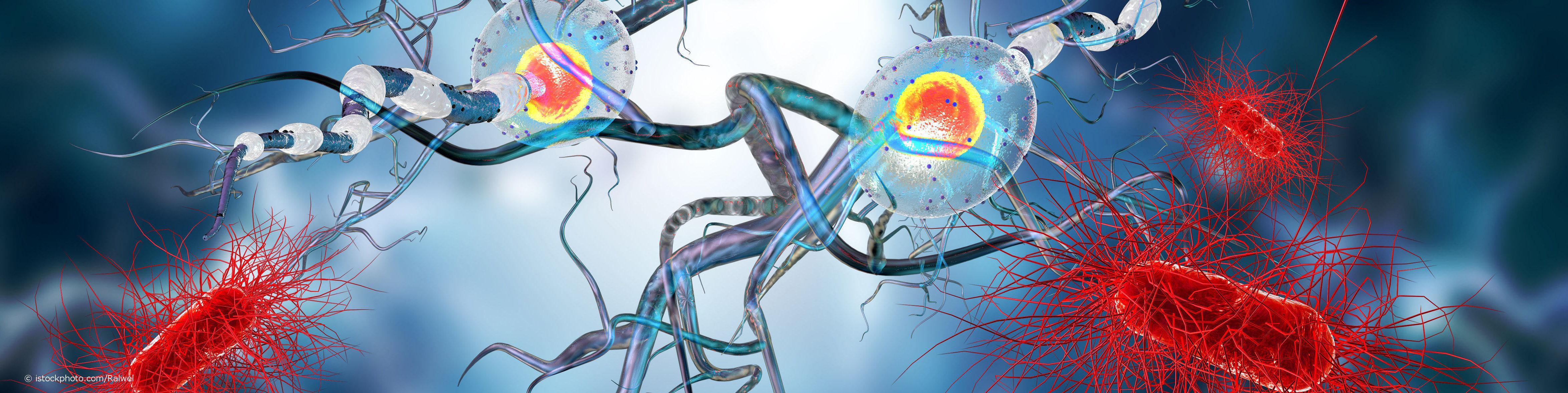 Gelangen bakterielle oder virale Erreger in Gehirn, Hirnhäute und Rückenmark entstehen verschiedene Entzündungsarten.