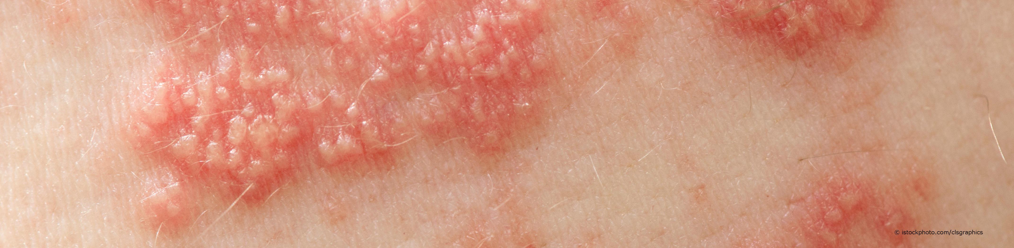 Gürtelrose (Herpes zoster) ist ein halbseitiger, gürtelähnlicher, stark schmerzender Hautausschlag.