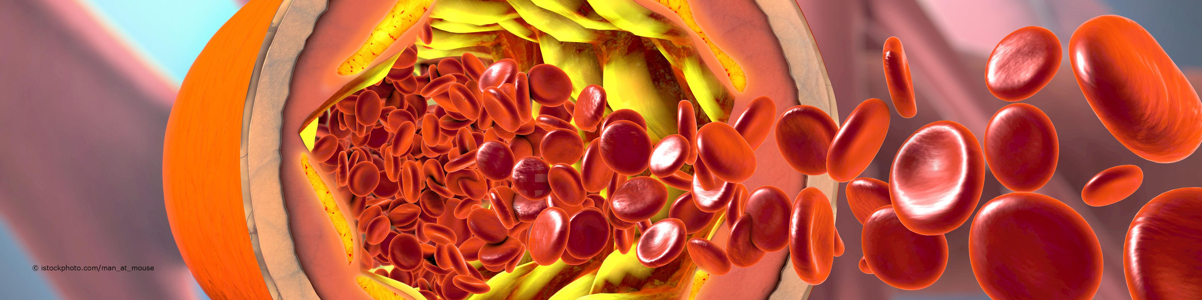 Blutplättchen versuchen ein durch Fetteinlagerung entzündetes Blutgefäß zu reparieren