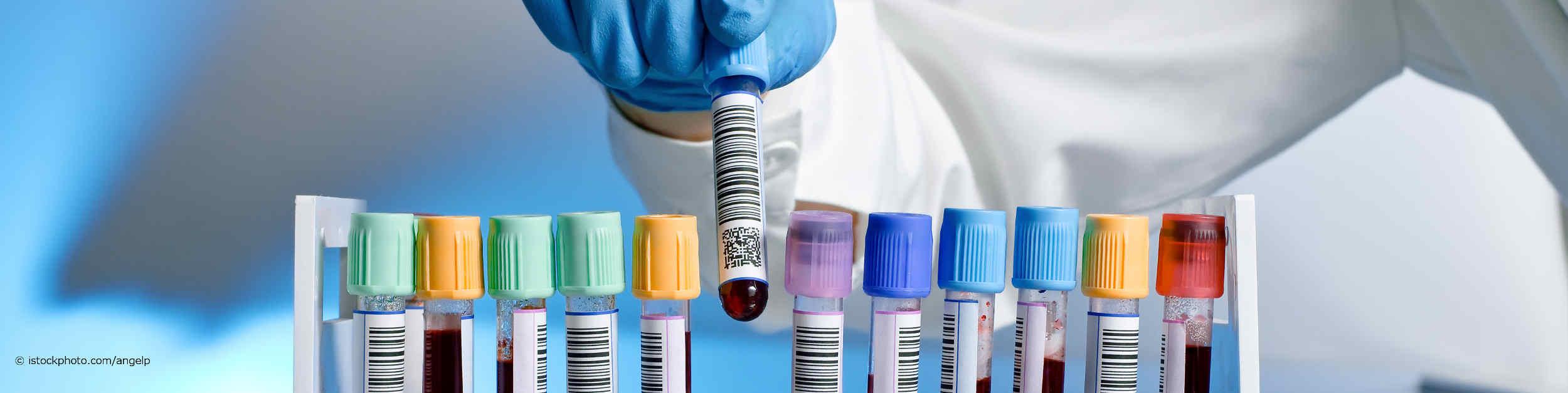 Ein bei DocInsider registrierter Facharzt für Laboratoriumsmedizin fügt ein Röhrchen mit einer Blutprobe und Strich- und Barcodebeschriftung in eine Halterung mit elf anderen Blutproben ein.
