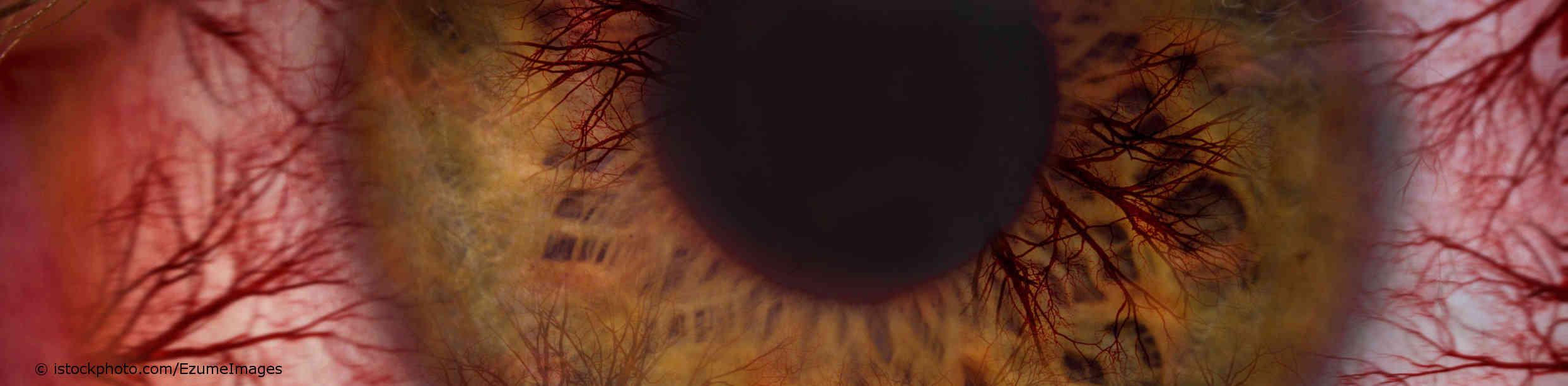 Ein blutroter Augapfel, hervorgerufen durch die Augengrippe.