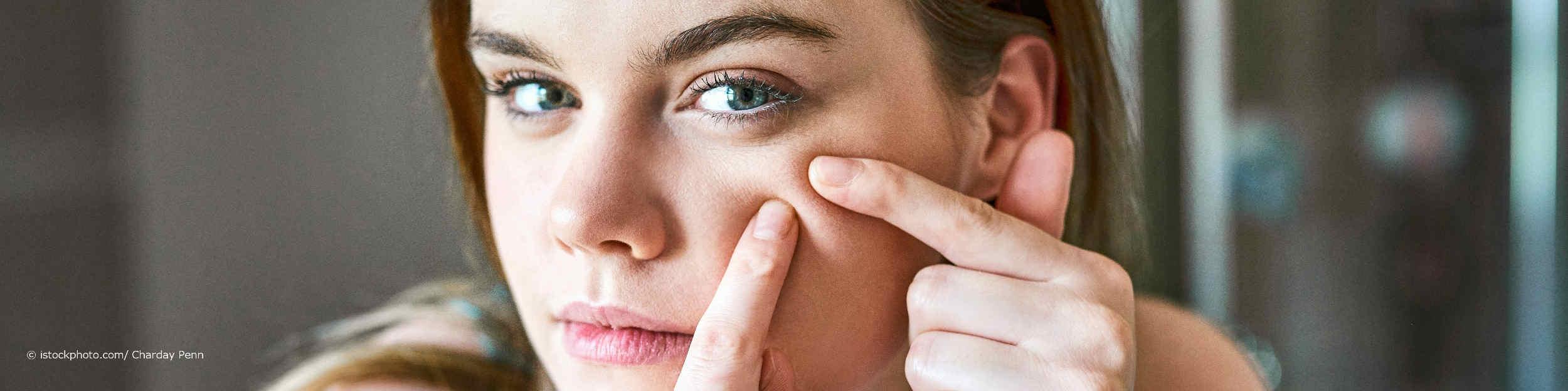 Junge Frau drückt in ihrem Gesicht einen Pickel aus, der durch das Tragen einer Coronaschutzmaske entstanden ist