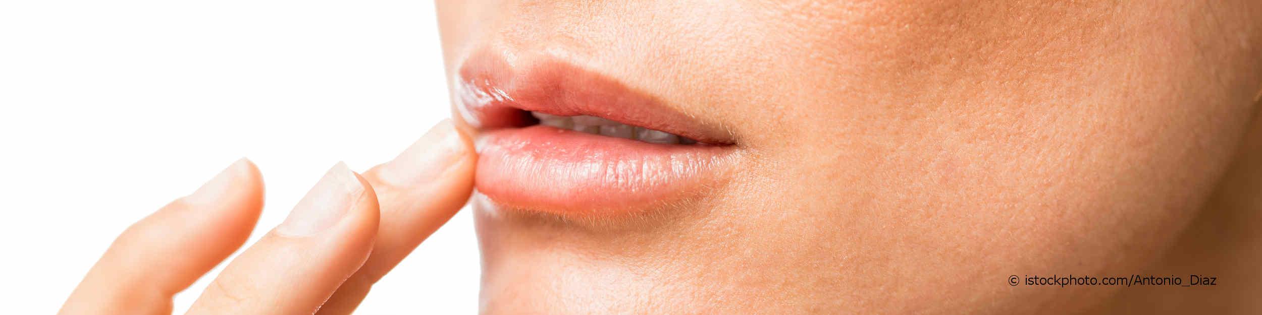 Junge Frau berührt ihren Mund mit Lippenherpes (Herpes simplex).